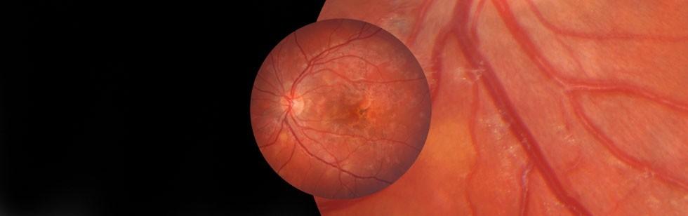 Día Mundial de la Diabetes: 14 de Noviembre. Como afecta a tu ojo.