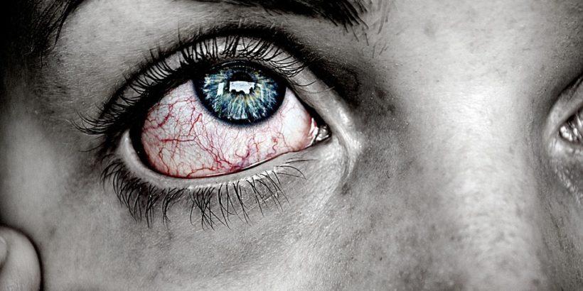 Recomendaciones para el Síndrome del Ojo Seco