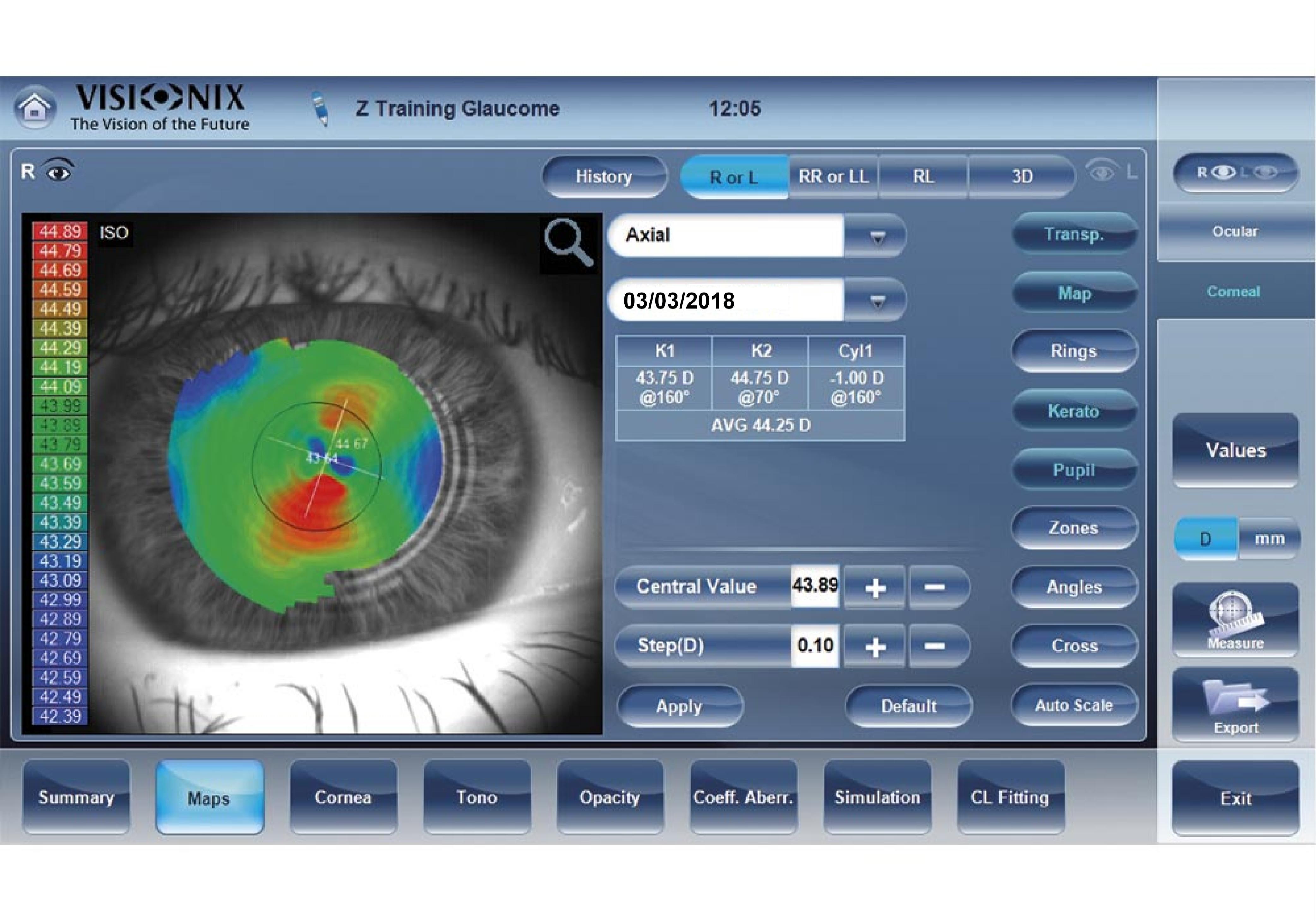La importancia de la Topografía Corneal de sus ojos.